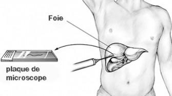 Dissémination tumorale le long du trajet de ponction biopsie hépatique : pas si rare ?
