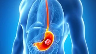 Nouveautés en cancérologie digestive ASCO 2006
