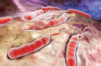 Choléra : toutes les réponses à vos questions