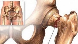 Fractures de hanche: nouvelles données épidémiologiques