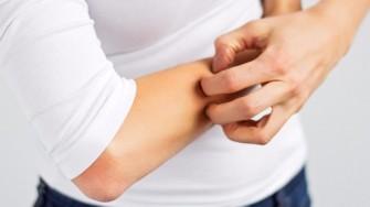 Nouvelle étude : leczéma pourrait causer des maladies cardiovasculaires
