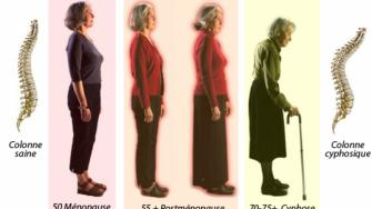 Ostéoporose & risque de fractures osseuses chez le sujet âgé