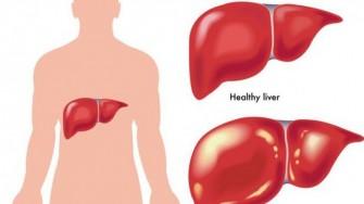 Transplantation hépatique à partir de donneur vivant pour carcinome hépatocellulaire : Au-delà des critères de milan ?