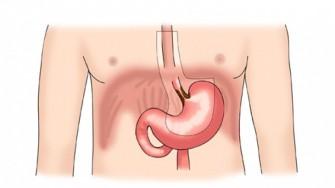 Un cancer oesogastrique avec une lame dascite à léchoendoscopie est le plus souvent inopérable