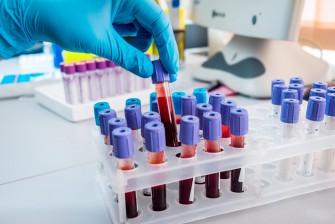 Un test sanguin détecte 8 types de cancers avant l'apparition des symptômes