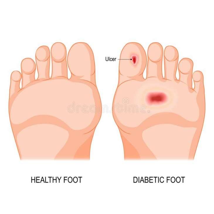 9 Juin : Journée mondiale de la santé du pied