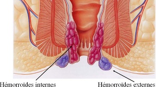 Les hémorroïdes