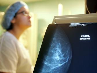 Plan national anti-cancer: définition des zones pilotes pour le dépistage du cancer du sein