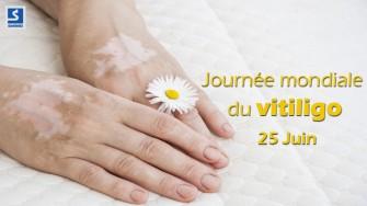 25 Juin : Journée mondiale du vitiligo