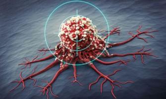 Pour mieux combattre le cancer : Affamez les cellules cancéreuses