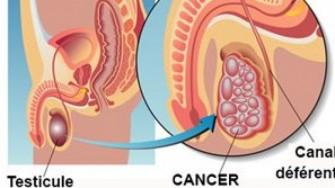 Cancer du testicule: la chimiothérapie aussi efficace que la  radiothérapie